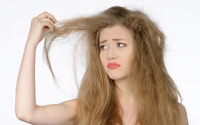 điều trị chứng rụng tóc